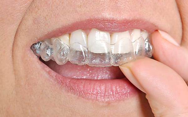 הסוף לגשר בשיניים? מצאנו יישור שיניים שקוף במחיר נגיש לכולם