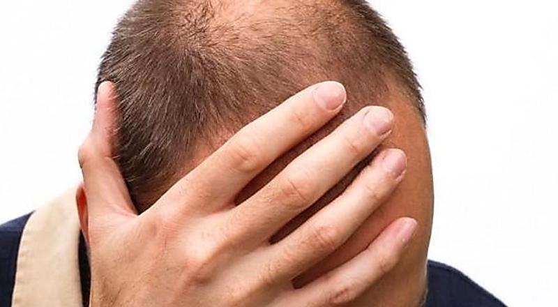 Cabelo com entradas? Fórmula indígena pode ser a solução para o crescimento de cabelo