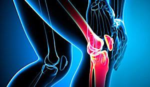 Médico colombiano reveló la cura para el dolor en articulaciones