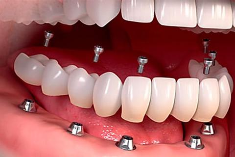 Here's What Dental Implants Could Cost in 2021
