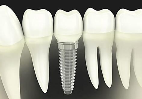 Dental implants cost in 2019 may surprise you