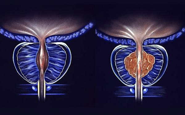 Prostate : une astuce simple pour réduire sa taille (à faire tous les jours)