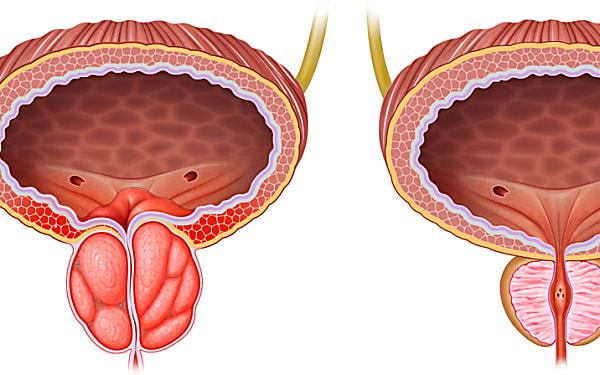 Prostate gonflée : geste simple à faire pour la soulager