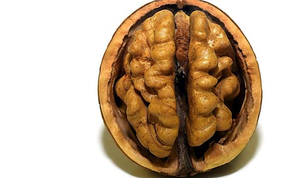 """5 """"Brain Fog"""" Contributing Foods - Never Eat These 5 Foods"""
