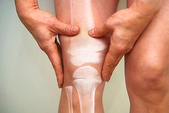 Ostéoporose et arthrose : bien nourrir ses os et ses muscles