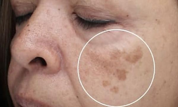 Do This To Dark Spots Every Morning (See What Happens)