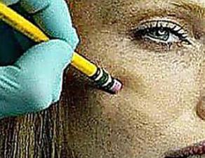 Medici sconvolti dal nuovo metodo per sbarazzarsi delle rughe