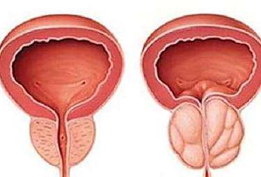 Do this Immediately if You Have Enlarged Prostrate (Watch)