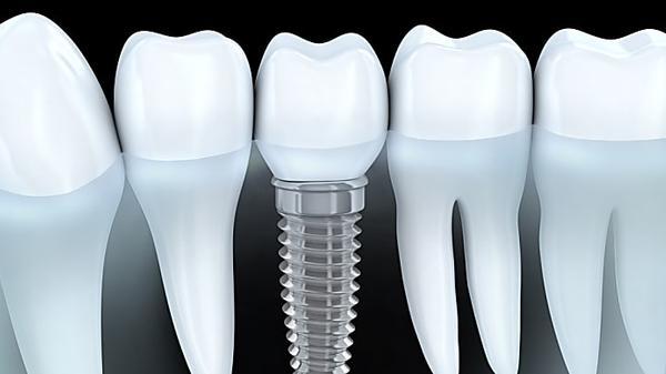 Il vero prezzo degli impianti dentali nel 2019