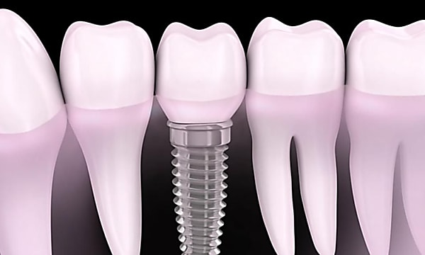 Here Is What Full Mouth Dental Implants Should Cost You in 2021