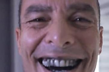 Paulo Zulu e mais celebridades chocam c/ segredo de sorriso perfeito